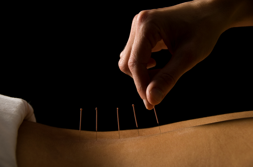 How Much Does Acupuncture Cost?